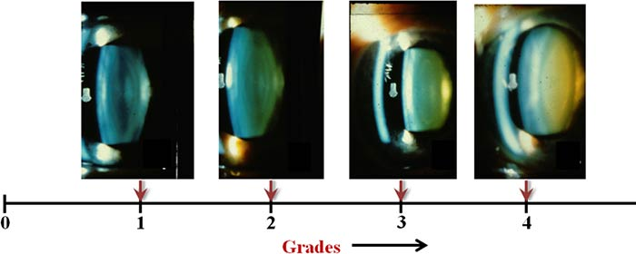 Cataract Grading Systems