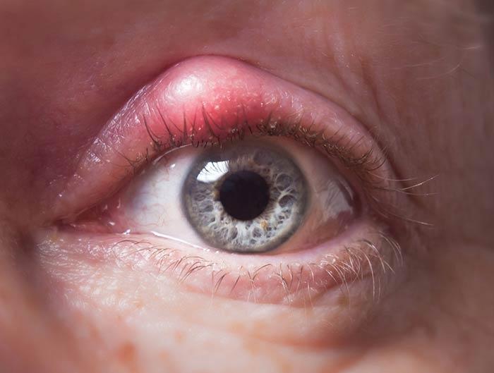 Eye Stye