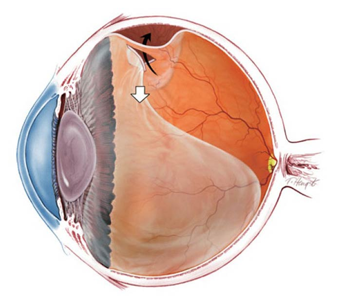 PVD Eye Disease