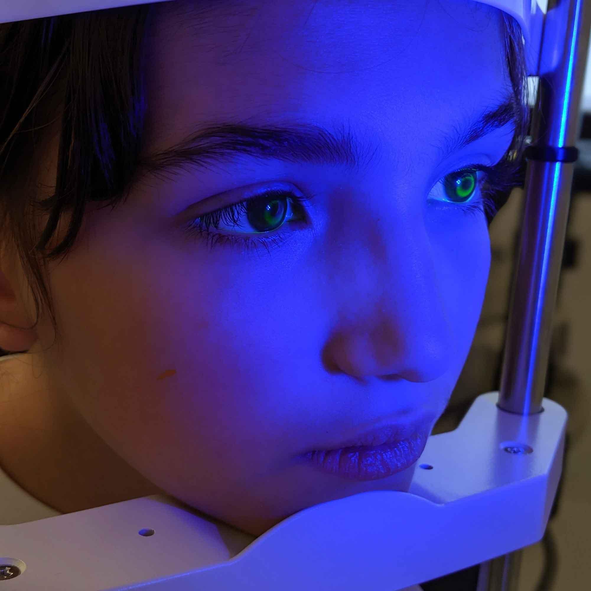 Ortho-K for Myopia Management